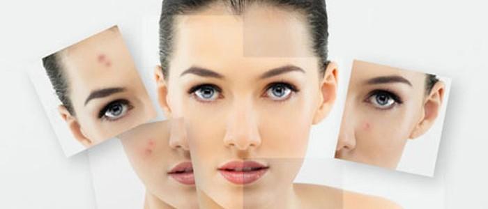 Welke make-upstijl is het beste voor het verbergen van acne? Bruikbare trucjes en adviezen